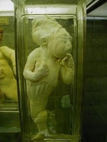 เด็กในขวดดอง